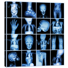 Canvastavla  Xrays of a child body